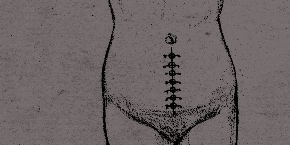 Drawing of a woman's torso with stitches after a c-section.